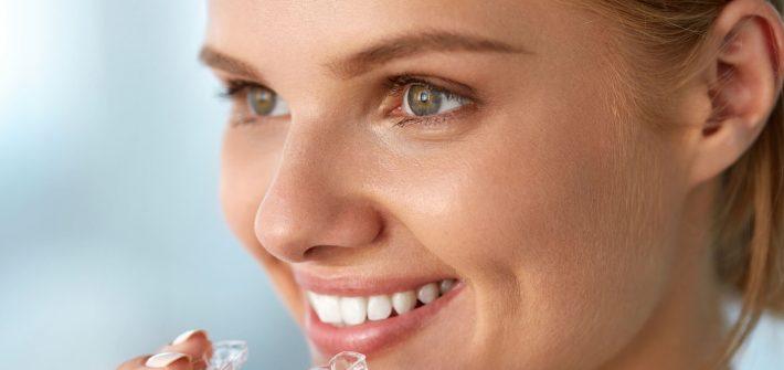 Arquivos Moldeira Para Clarear Dente Blog Odontoclinica