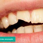 Dente Trincado ou quebrado