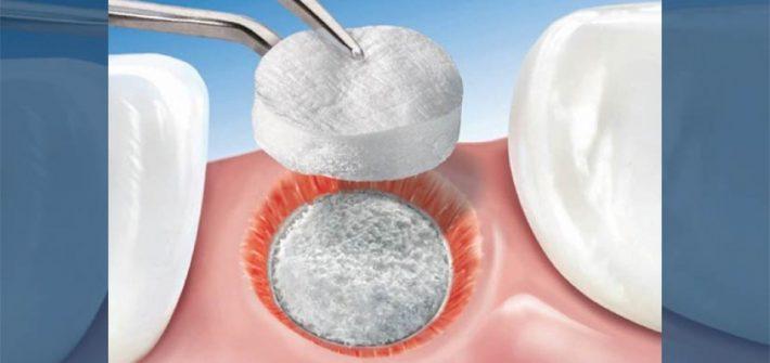 Enxerto ósseo dentário